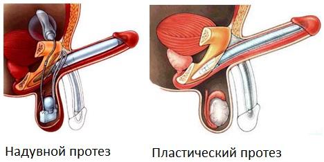 Операции по удлинению полового члена