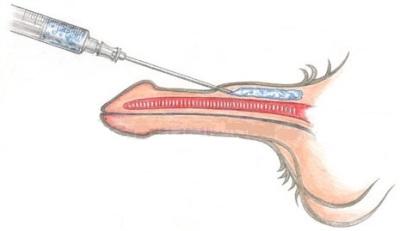 Операция по утолщению пениса