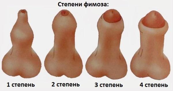 фото 126