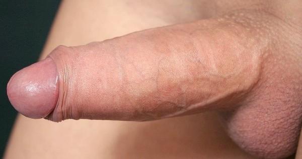 коническая форма пениса