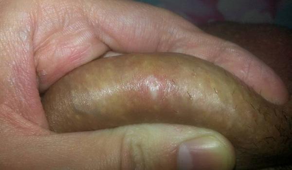 аллергия на гепариновую мазь что делать