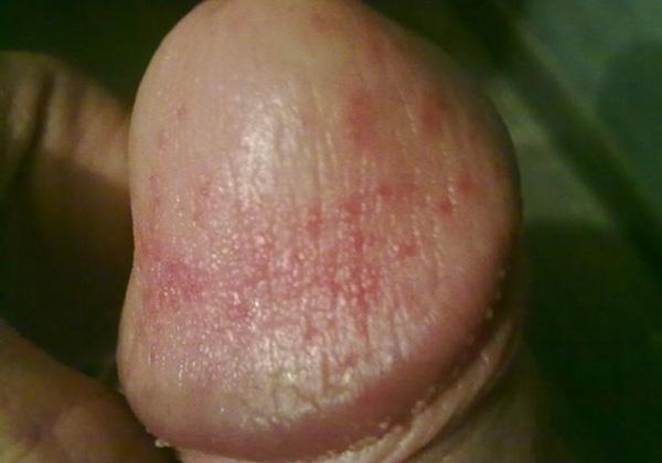 гепариновая мазь побочные эффекты