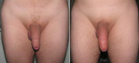 До и после применения Гигамакс: фото 1