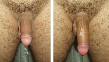 До и после использования: фото 1
